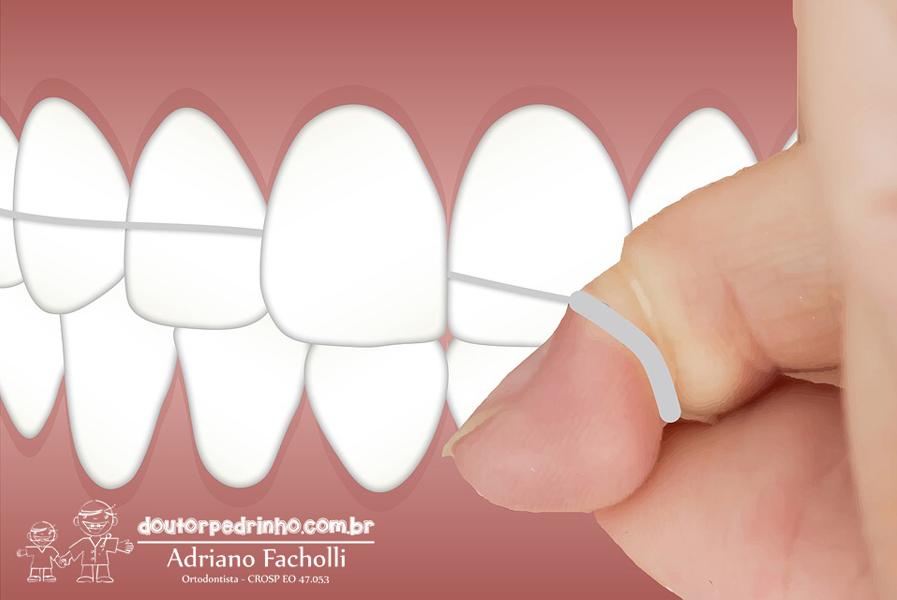 fio dental 3